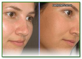Крем для лица для жирной кожи