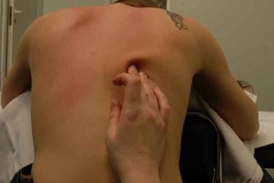 Разновидности точечного массажа